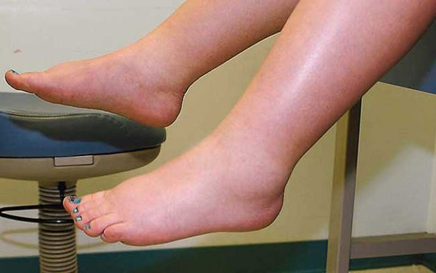 کاهش ورم دست و پا در دوران حاملگی
